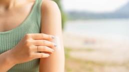 Comment connaître mon phototype de peau (sensibilité au soleil) ?
